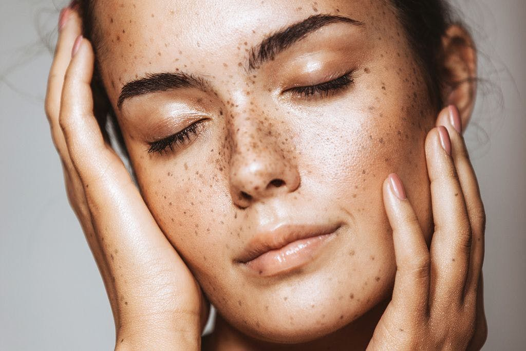 best concealer for dry skin and freckles